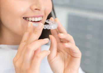 alignement dentaire